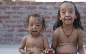Μπέντζαμιν Μπάτον -Δυο, Ινδία, [εικόνες], bentzamin baton -dyo, india, [eikones]