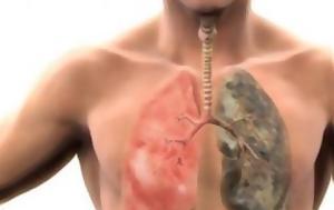 Ο καλύτερος φυσικός τρόπος να καθαρίσετε τους πνεύμονες σας από πίσσα και νικοτίνη
