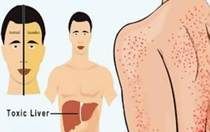 ΠΡΟΣΟΧΗ - AYTA, 12 Συμπτώματα, Συκώτι, Πρόβλημα -, prosochi - AYTA, 12 sybtomata, sykoti, provlima -