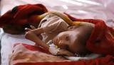 Υεμένη, ΟΗΕ,yemeni, oie