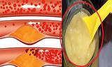 Με λίγες κουταλιές αποχαιρετήστε φραγμένες αρτηρίες,  υπέρταση,χοληστερόλη