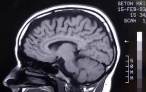 Νέα έρευνα για την διπολική διαταραχή