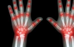 Αρθρίτιδα, arthritida