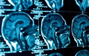 Η επιστήμη των νευροοικονομικών και η χρησιμότητά της