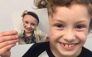40  φωτογραφίες πριν και μετά ανθρώπων που νίκησαν τον καρκίνο