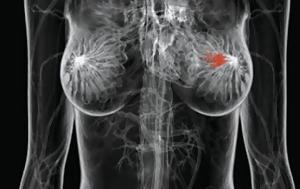 Καρκίνος, Υποπροϊόν, karkinos, ypoproion