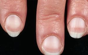 Τι δείχνουν τα νύχια για την υγεία μας