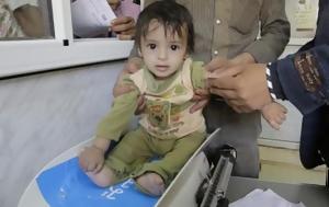 Τραγωδία, Υεμένη, 20 000, tragodia, yemeni, 20 000