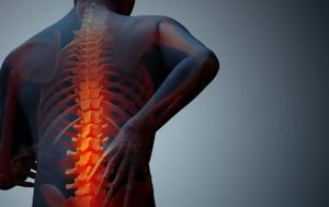 Οστεοπόρωση, Αυτές, osteoporosi, aftes