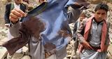 Υεμένη, 5 000,yemeni, 5 000