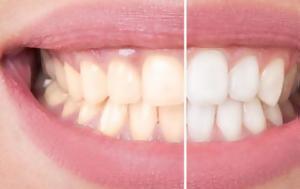 Δόντια, Σπιτική, dontia, spitiki