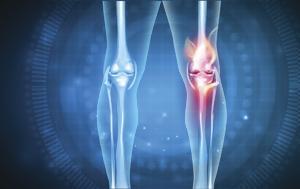 Παγκόσμια Ημέρα Αρθρίτιδας, Ποιες, pagkosmia imera arthritidas, poies