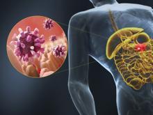 Νοροϊός  Τι πρέπει να γνωρίζουμε για τον ιό που προκαλεί γαστρεντερίτιδα 09dd767655c
