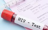 Δωρεάν, HIV, Αθηναίων,dorean, HIV, athinaion