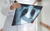 Ο κίνδυνος που μπορεί να κρύβουν οι υποτροπιάζουσες λαρυγγίτιδες και πνευμονίες,