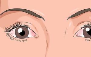 14 ανησυχητικά σημάδια στα μάτια που δείχνουν την κατάσταση της υγείας μας – Με ποιες ασθένειες συνδέονται