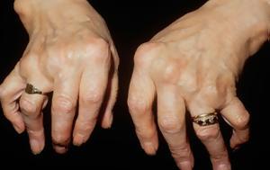 Αρθρίτιδες, Οστεοαρθρίτιδα, arthritides, osteoarthritida