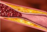 Χοληστερίνη, HDL,cholisterini, HDL