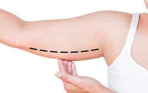 Πως αντιμετωπίζεται η χαλάρωση του δέρματος στα μπράτσα